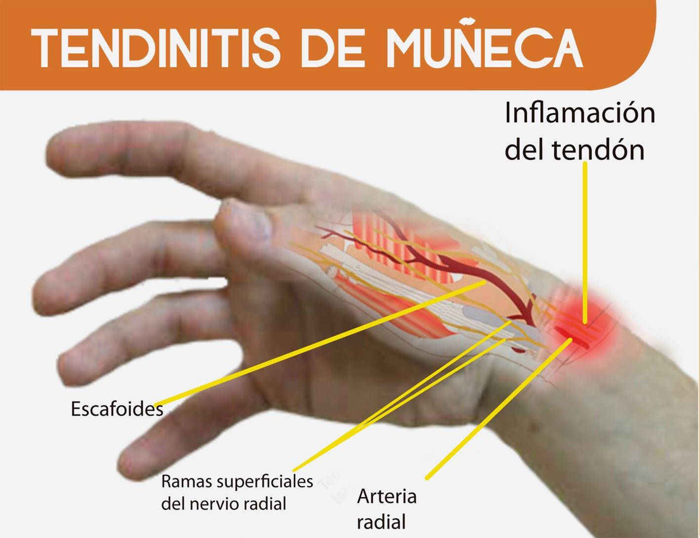 steroid injection knee rheumatoid arthritis