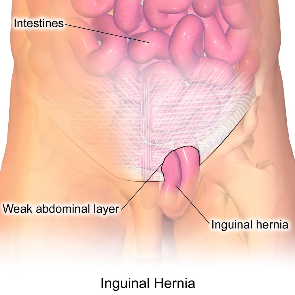 Ejercicios para corregir hernia inguinal
